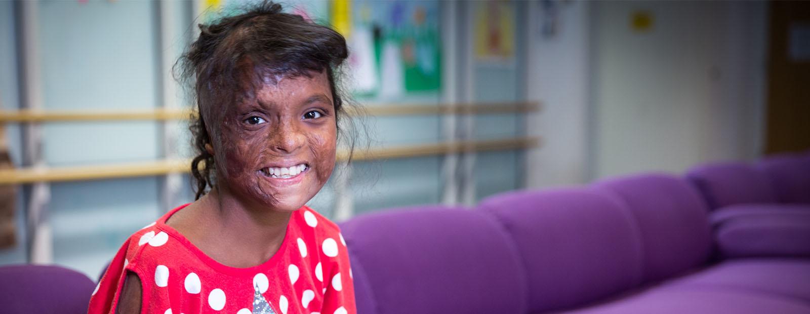 Burned Childrens' Fund: Helping Burned Children