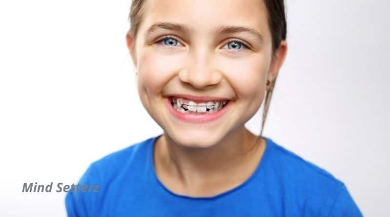 The Different Types of Orthodontic Techniques
