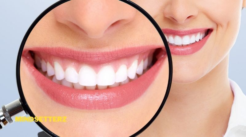Dental Patients Who Should Avoid Teeth Whitening