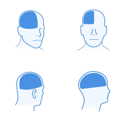 Head Pains: Most Common Types